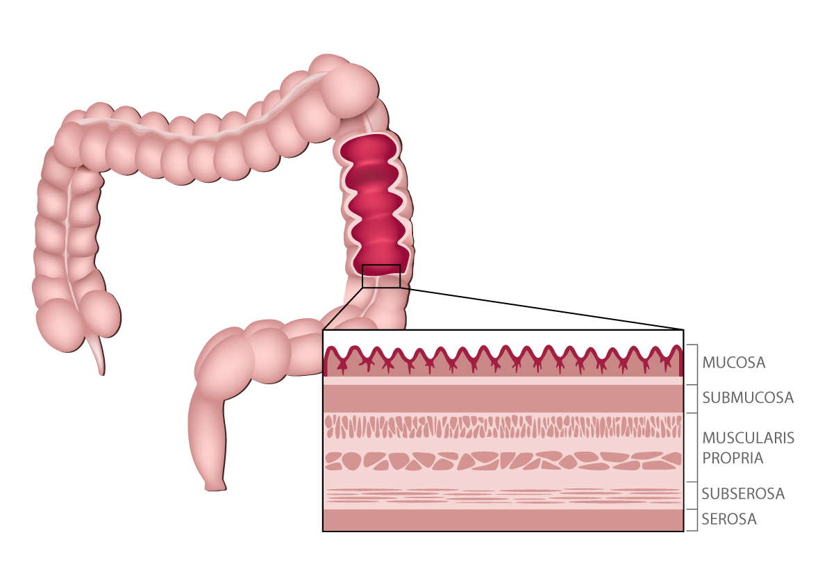 Colon cancer anatomy